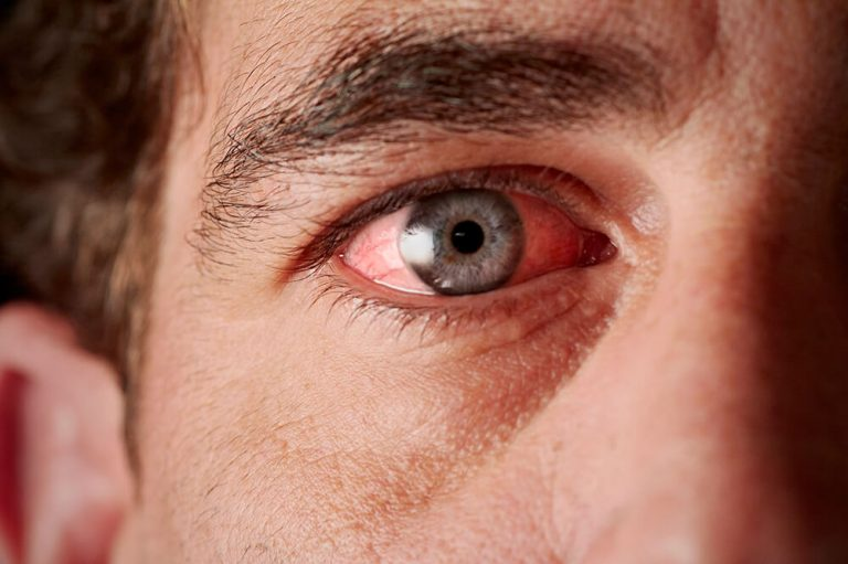 A Síndrome do Olho Seco